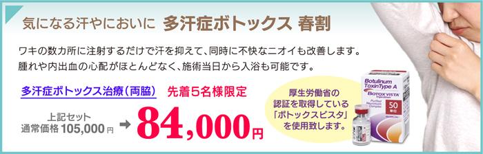 160404_takanBX